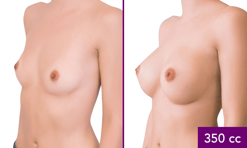 how-much-is-boob-implants-pussy-porn-sex